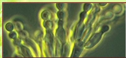 Schimmelgutachter-Schimmelpilzgutachter, muffiger Geruch, angelaufene Fensterscheiben, Wohnungen